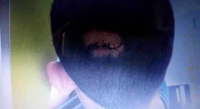 Adolescente foi agredido na cabeça dentro da Fundação Casa