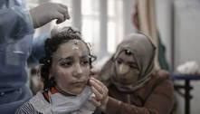Gaza: máscaras impressas em 3D disfarçam rostos queimados