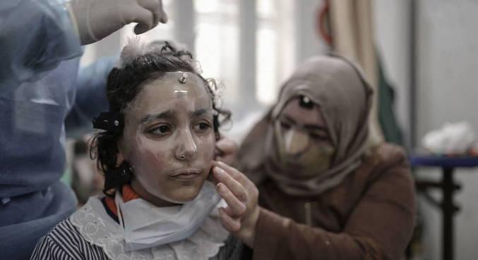 Incêndio causado por vazamento de gás em campo de refugiados atingiu garota