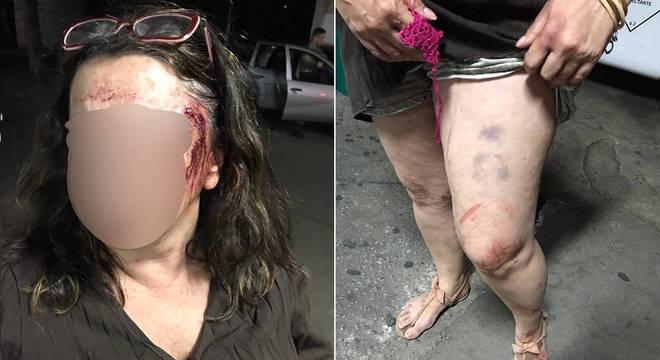 Mulher é torturada durante 24 horas em São Paulo