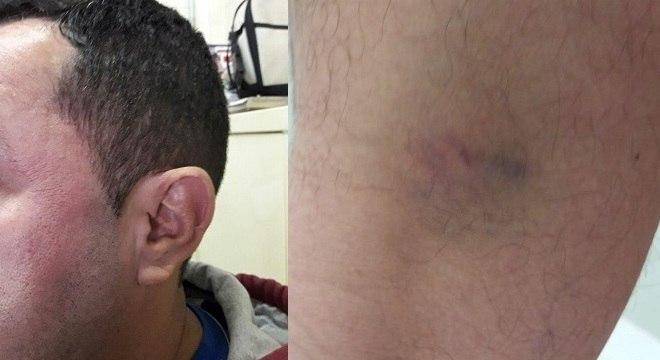 Marcio da Silva Gomes, 41 anos, professor de matemática, agredido por alunos