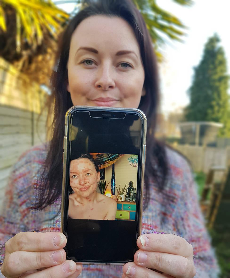 Aimee mostra uma foto de sua psoríase