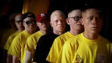Assassinatos de albinos cresceram na pandemia, revela fonte da ONU