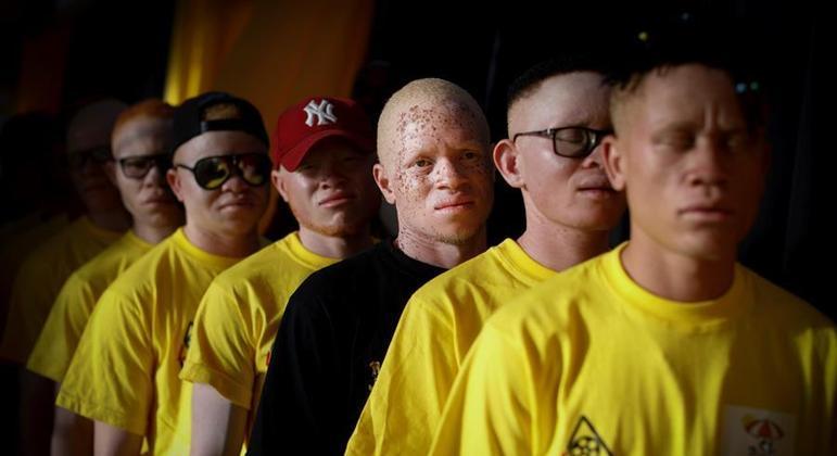 Maioria dos albinos mortos na pandemia foram crianças, afirma especialista da ONU