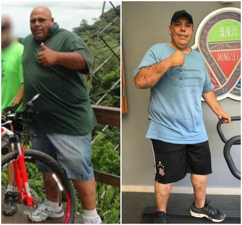 Almir chegou a 160 quilos e agora retomou sua batalha contra a obesidade