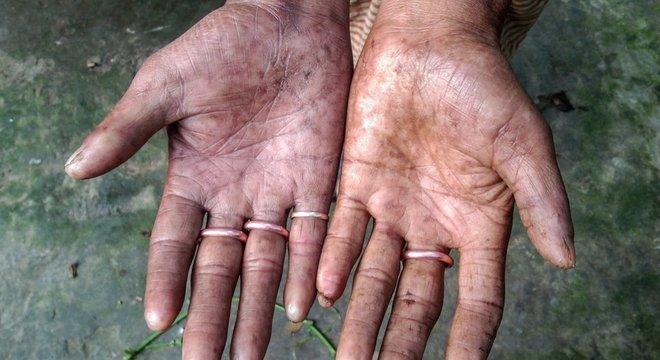 Dedos de Amal Sarker não têm padrões distintos encontrados na maioria das pessoas