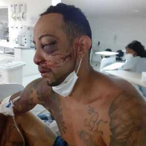 Ambulante diz ter sido atacado por vigias da CPTM