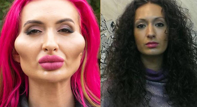 Conhecida por ter as maiores maçãs do rosto do mundo, Anastasia Pokreshchuk faz procedimentos desde os 26 anos