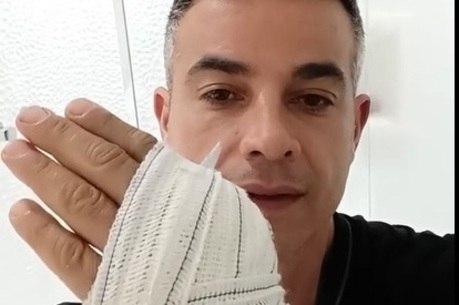 Ator mostrou a mão machucada após acidente