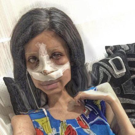 A mais recente é uma intervenção no nariz, que aparentemente é para deixá-la ainda mais parecida com a estrela de HollywoodVale o clique:Sexagenária é hospitalizada após confundir wasabi com abacate