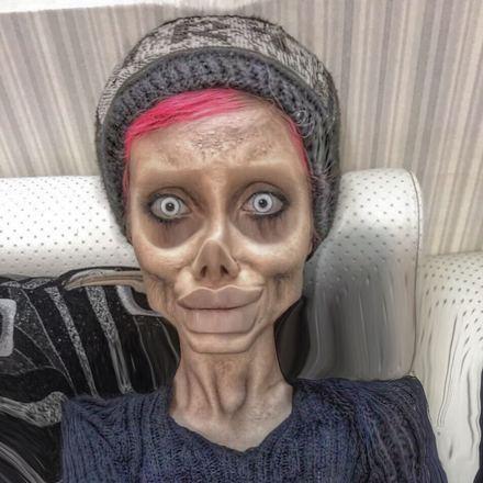 Muitos acharam que as ataduras que Sahar postou no nariz nada mais eram que um truque de efeitos especiais