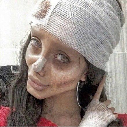 Sarah é a última vítima de uma série de influencers presas nas últimas semanas no IrãO Hora 7 já comenta as peripécias de Sahar há algum tempo. Confira a seguir a nossa repercussão de quando a moça passou por mais uma cirurgia, dessa vez no nariz