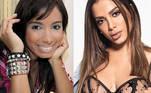 Das celebridades brasileiras que parecem irmãs perdidas das Kardashian, a patroa Anitta com certeza está no topo. Milionária e famosa, a empresária faz questão de mostrar seus procedimentos estéticos nas redes sociais, e acaba influenciando seus milhões de seguidores. No começo do ano, a influenciadora Larissa Andjara, sósia de Anitta, mostrou na web o preenchimento que fez para ficar ainda mais parecida com a famosa