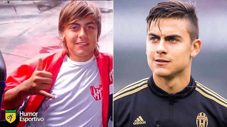 Antes e depois: as mudanças de Dybala
