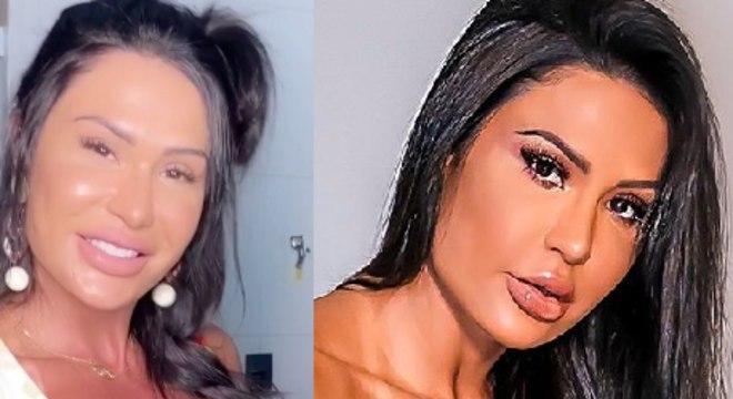 antes e depois de Gracyanne