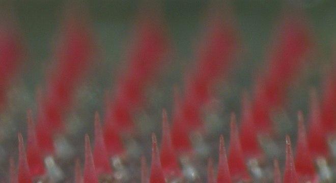 Imagem de microscópio mostra microagulhas de menos de 1 milímetro