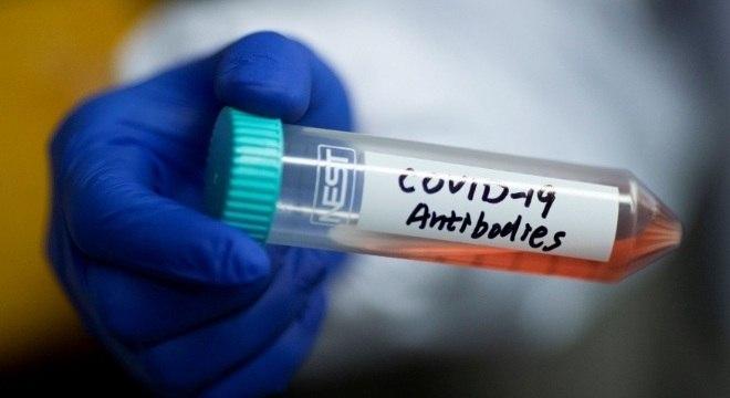 Cientistas chineses isolaram anticorpos que podem ser eficientes contra vírus