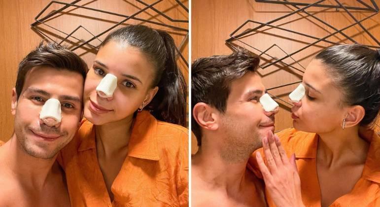 Apaixonados, Mariano e Jakelyne Oliveira fazem rinoplastias juntos