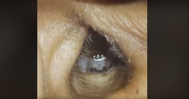 Um vídeo assustador, e ao mesmo tempo fofo está fazendo o maior sucesso na web. Uma aranha sai da orelha de uma mulher, enquanto parece assustada com o mundo externo