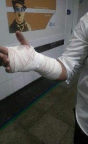 Agente ferido no braço