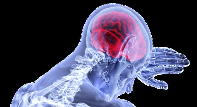 Fraqueza súbita e formigamento estão entre os sintomas de AVC