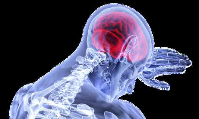 O acidente vascular cerebral, mais conhecido como AVC, é a segunda maior causa de mortes no mundo. O neurorradiologista José Guilherme Caldas, do Hospital das Clínicas de São Paulo, explica que o problema pode ter duas causas: a falta de sangue no cérebro, que provoca o AVC isquêmico, e a ruptura de um dos vasos sanguíneos cerebrais, o AVC hemorrágico. De acordo com o médico, uma em cada seis pessoas poderá ter AVC durante a vida e, a taxa de AVC hemorrágico é mais comum entre as mulheres (60%) contra 40% dos homens. Já o AVC isquêmico não apresenta diferença entre os sexos*Estagiária do R7 sob supervisão de Deborah Giannini