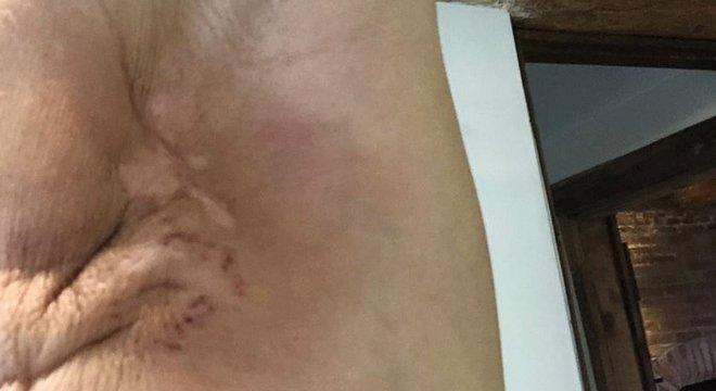 O segundo tratamento deixou O'Riordan com os movimentos do ombro reduzido