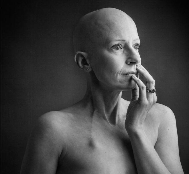 Liz O'Riordan foi diagnosticada com câncer de mama pela primeira vez em 2015