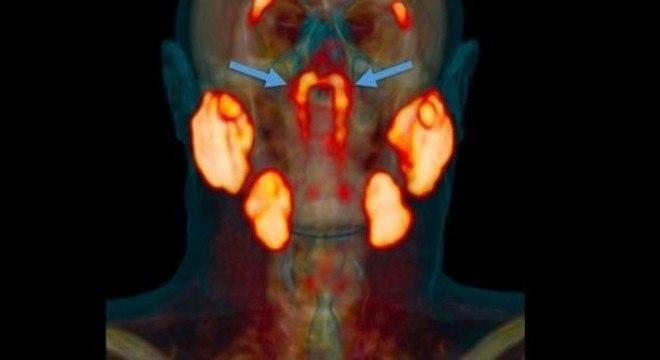 As novas glândulas ficam atrás do nariz, no encontro com a garganta