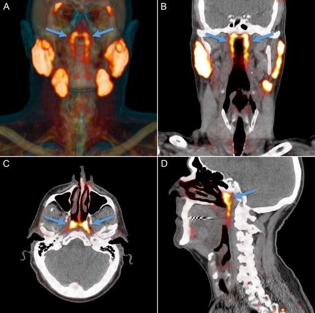 Estas setas mostram onde os pesquisadores encontraram os 'órgãos'