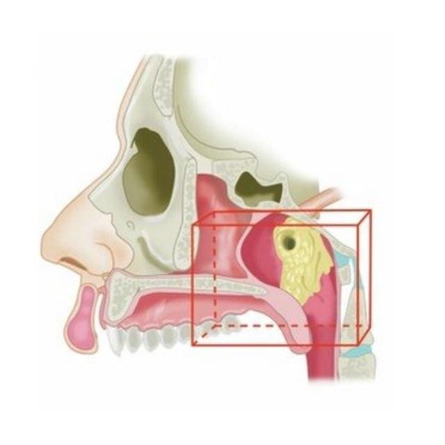 As possíveis novas glândulas foram encontradas no topo da garganta