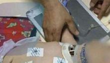 Bebê de 6 meses corre risco de vida após suposta agressão em Anápolis