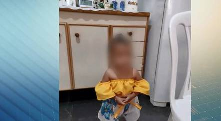 Bebê foi internada com amassamento no crânio