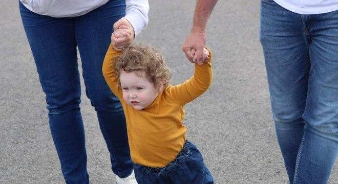 Bebê dando os primeiros passos após ter pernas amputadas
