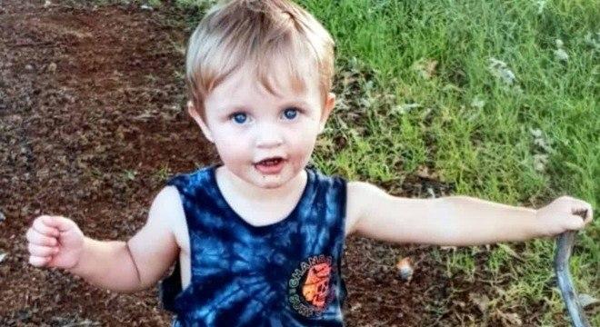 Bebê de 20 meses que contraiu a meningite B