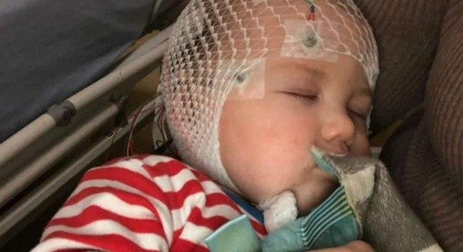 Bebê menino que quase morreu por causa do sarampo