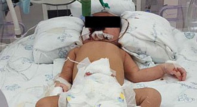 Bebê recém-nascida ficou lutando pela vida após mãe jogá-la do terceiro andar