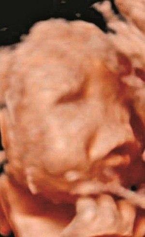 Exame de imagem feito pela mãe durante a gestação