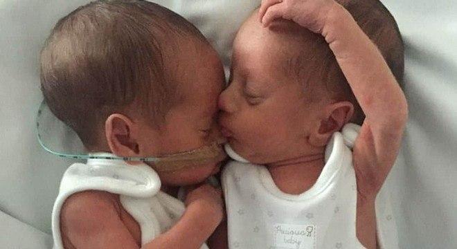 Bebês gêmeos que passaram por grande mudança após quase falecerem