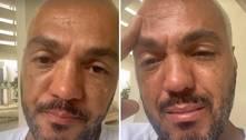 Belo chora após ser solto da prisão: 'Grito em silêncio'