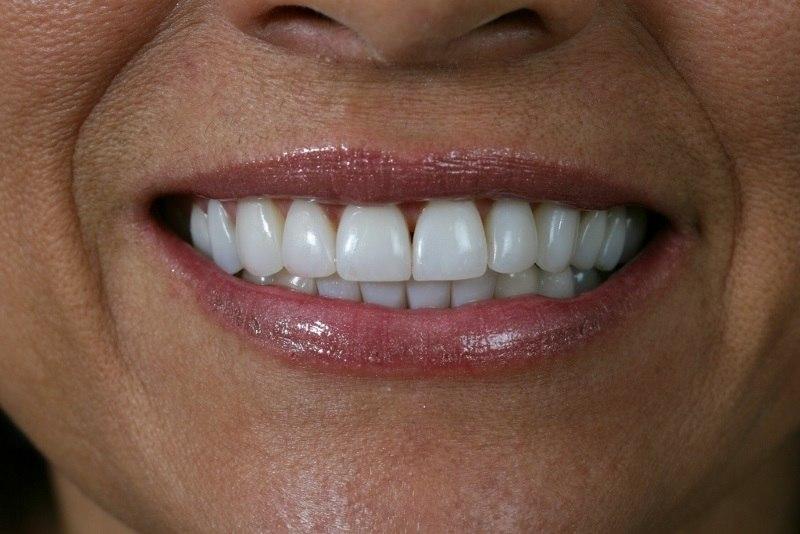Conheca Os Cuidados E Os Riscos Antes De Fazer Clareamento Dental