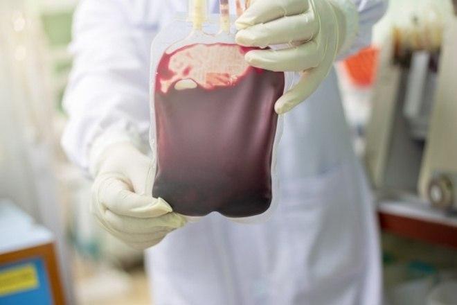 Por que há tantos critérios para a doação de sangue? A hematologista Odila Moura, da BP - A Beneficência Portuguesa de São Paulo, explica que os critérios se dão para a proteção do doador e do receptor do sangue. Muitas das recomendações e proibições, temporárias ou não, se dão porque os bancos de sangue trabalham com todas as possibilidades que podem ocorrer durante uma transfusão, mesmo que elas sejam mínimas