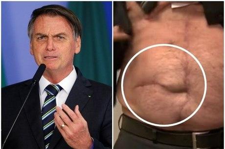O presidente Jair Bolsonaro fará cirurgia de hérnia incisional