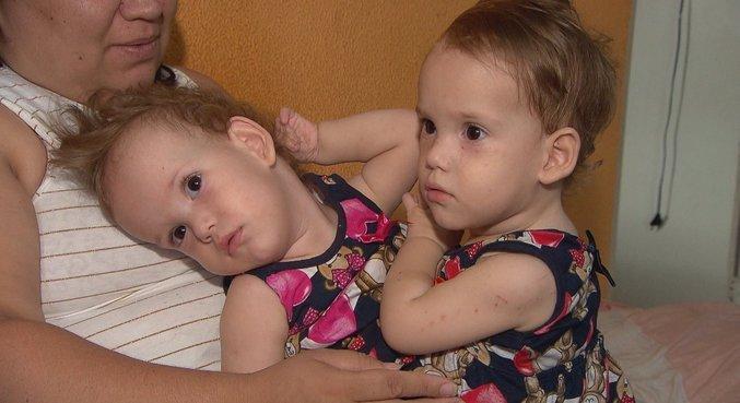 Programa mostra como vivem irmãs siamesas