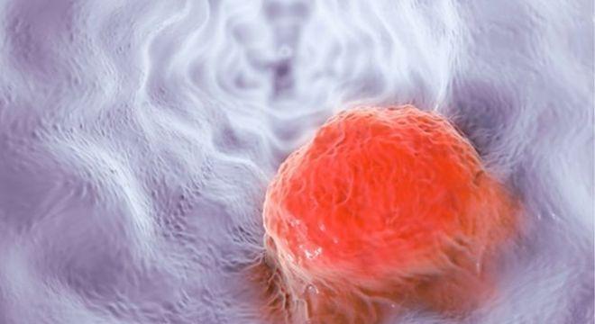 A ideia é descobrir se o câncer de esôfago (ilustração), por exemplo, deixa uma assinatura química na respiração
