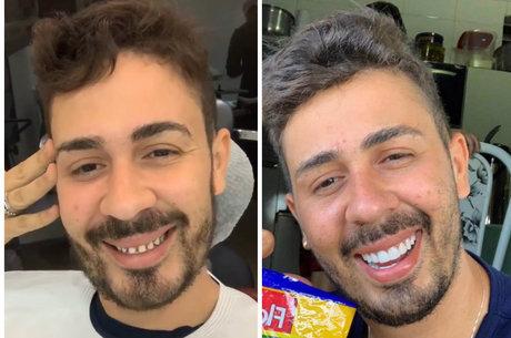 Influencer se divertiu ao aparecer sem lentes dentais