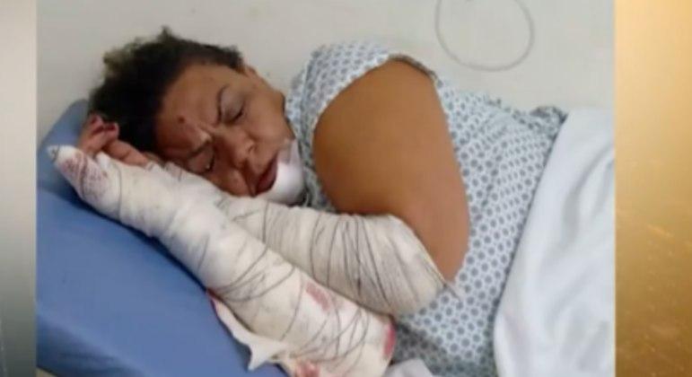 Edileuza foi hospitalizada com queimaduras e perfurações nos ouvidos
