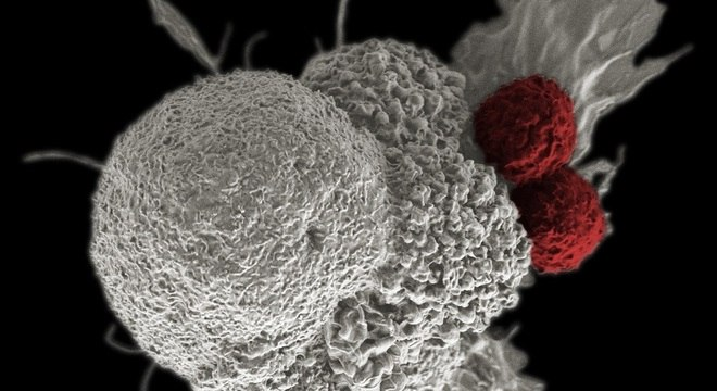 Célula cancerígena (branco) é atacada por duas células T citotóxicas