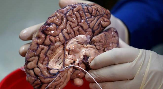 cérebros são armazenados em nitrogênio líquido para proteger contra a deterioração