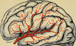 cérebro-avc